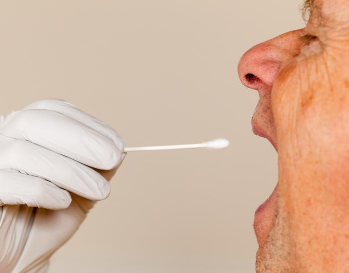 'Stress hormone' levels in saliva could pinpoint seniors with cognitive decline