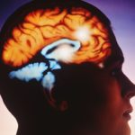 Deep Brain Stimulation Beneficial in Severe Tourette's