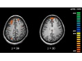 """Brain circuit problem likely sets stage for the """"voices"""" that are symptom of schizophrenia"""