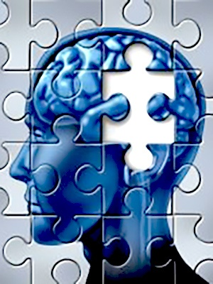 Deterioration of Brain Pathways Linked to Functional Decline in Alzheimer'sPsych Central News