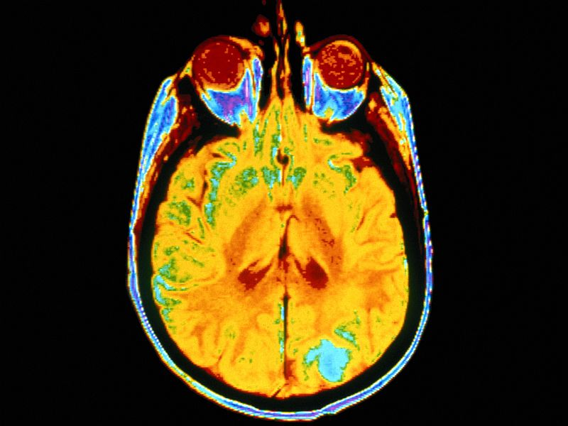 Severe Cerebral Damage ID'd on Imaging in Children With Zika