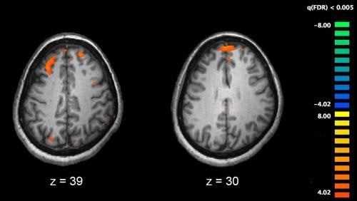 Negative symptoms of schizophrenia linked to poor clinical outcomes