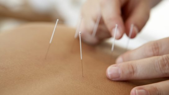 Acupuncture treated hot flashes more effectively than oral medications.