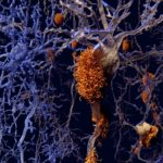 Alzheimer disease neurons