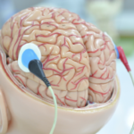 Deep Brain Stimulation Shows Promise As Alzheimer's Treatment