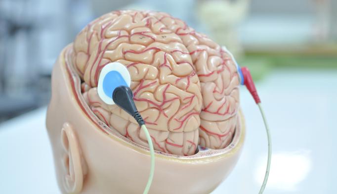 Deep Brain Stimulation Shows Promise As Alzheimer's Treatment