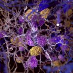 Amyloid plaques damaging neurons.
