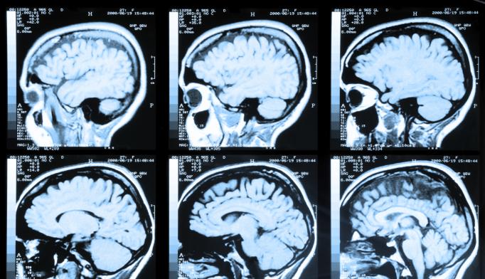 Neuroscience Explains Risk-Taking Behavior With Bipolar Disorder