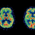 Crenezumab Misses Primary Targets in Phase II Alzheimer's Trial