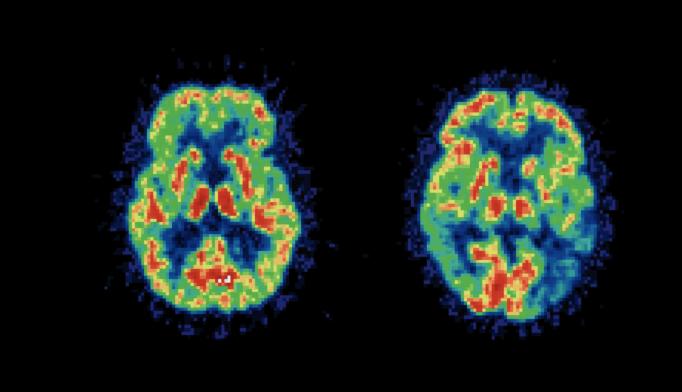 Slower Brain Network Development May Explain Adhd Psychiatry Advisor