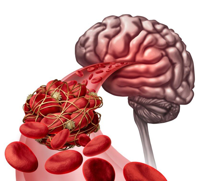 brain stroke blood clot