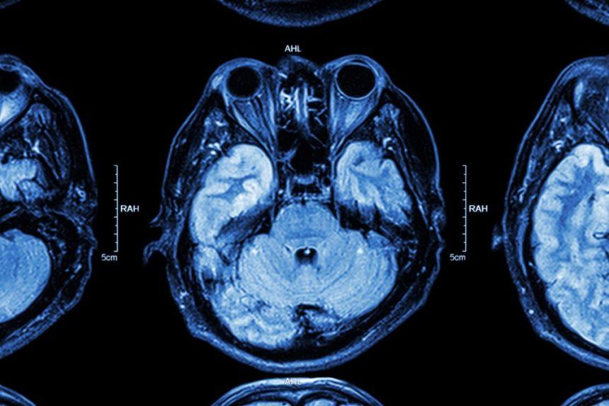 brain temporal lobe MRI
