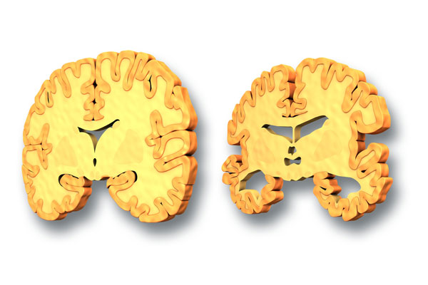 Over time, the degeneration of synaptic connections causes neuronal injury and death. This widespread neuronal death eventually causes atrophy of key brain regions, namely the hippocampus and temporal lobe, although widespread cerebral atrophy is seen in advanced cases of the disease.