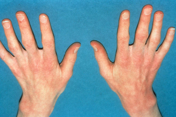 Patients with anorexia feel cold even when the temperature is normal. Their hands may be cold to touch due to poor circulation, and they may have blue, brittle nails.