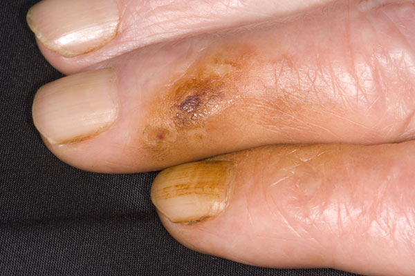 Brown stain on the fingers and fingernails of a cigarette smoker due to tar and nicotine build up from tobacco.