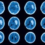 CT scan, stroke, brain