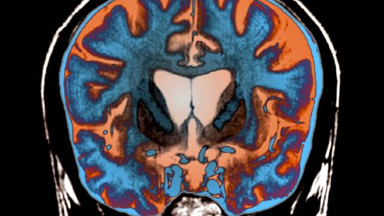 brain scan of someone with Huntington disease