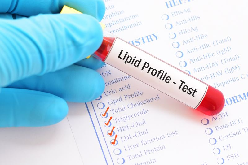 A blood test for a lipid profile