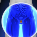 Primary Androgen-Deprivation Therapy (ADT) for Localized Prostate Cancer: Potential for Harm May Out