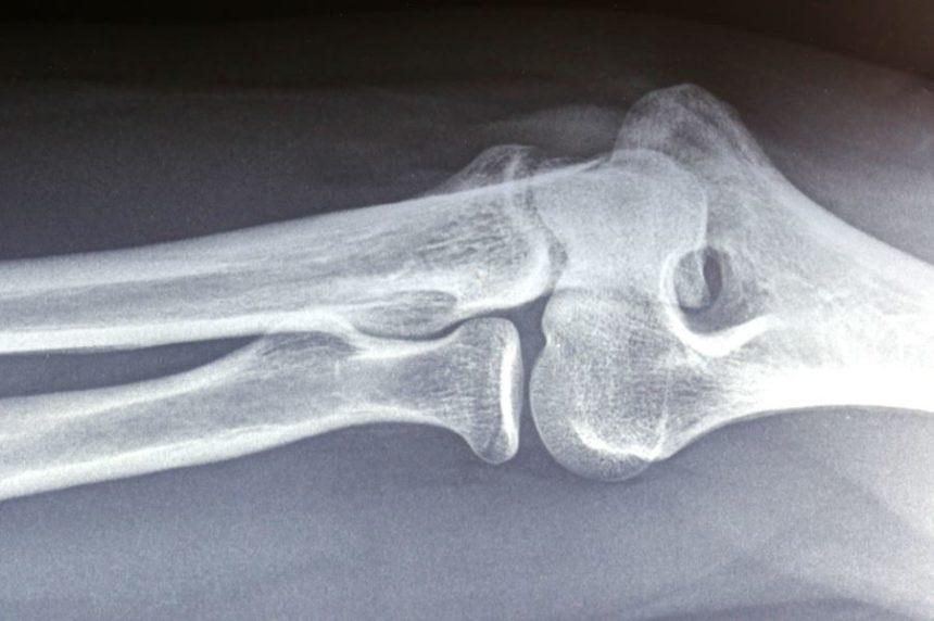 Orthopedic radiograph