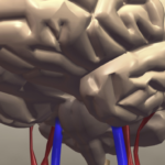 Stress and Depression Can Lead to Increased Stroke Risk