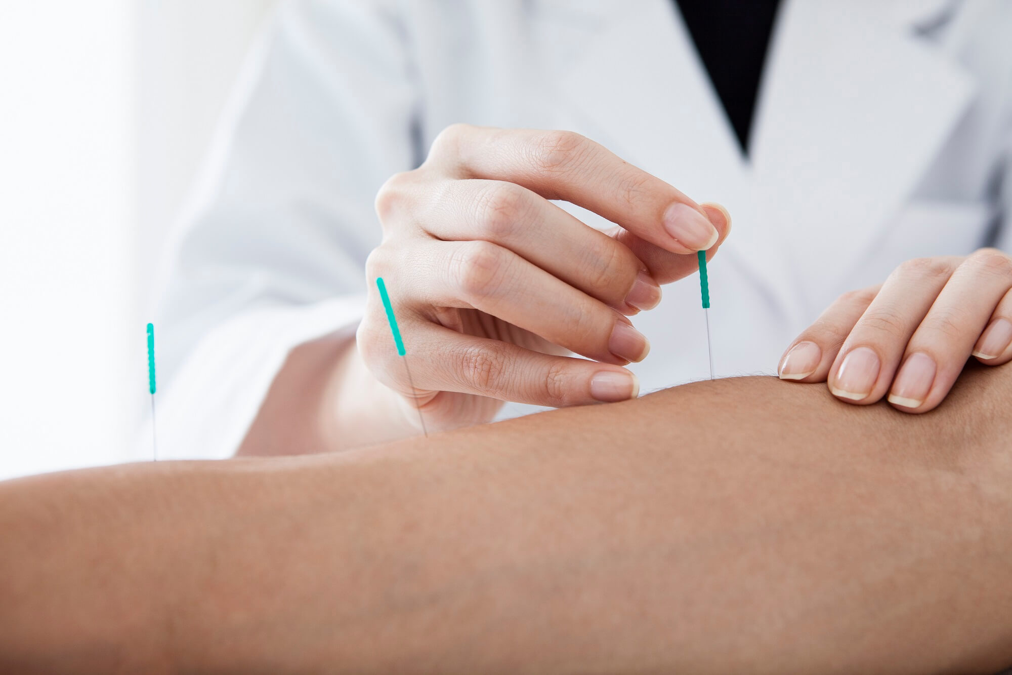 Acupuncture Therapy in Rochester & Minneapolis, MN
