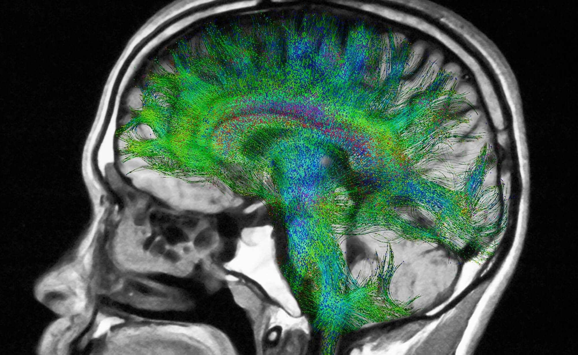 Can imaging genetics analysis identify depression in Parkinson's