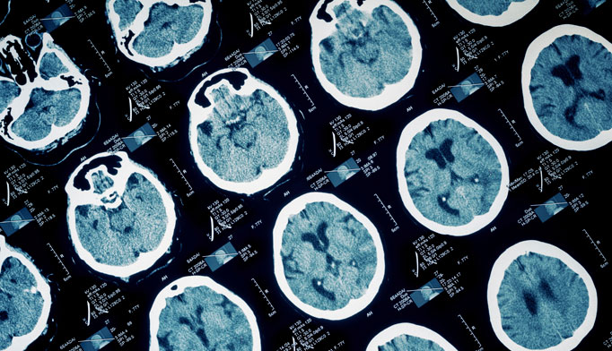 Reducing intracranial pressure after head injury