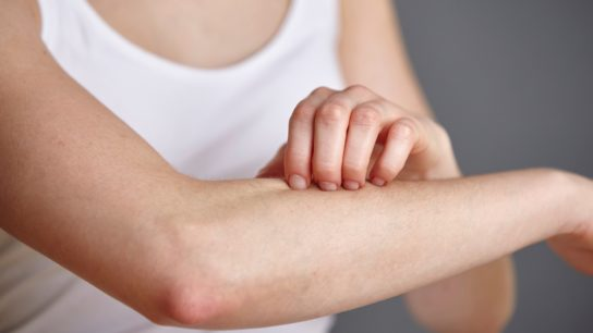 Woman itching arm.