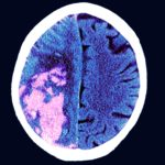 stroke, MRI